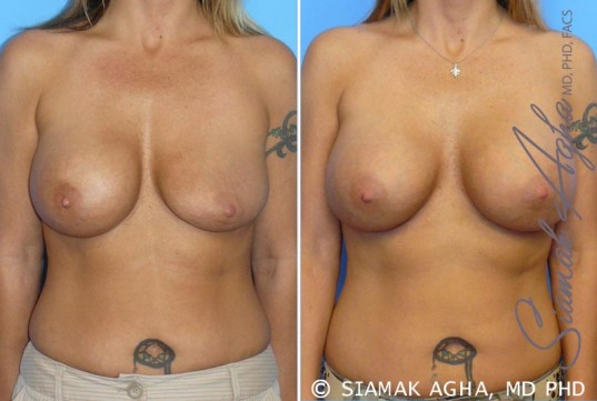 orange-county-breast-augmentation-revision-patient-1-front