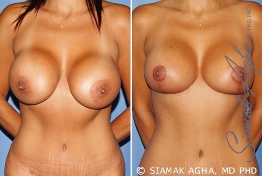 orange-county-breast-augmentation-revision-patient-10-front