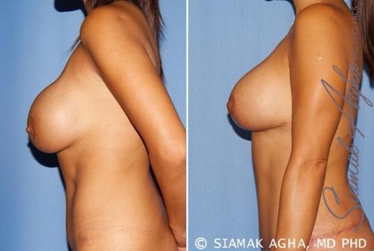 orange-county-breast-augmentation-revision-patient-10-left