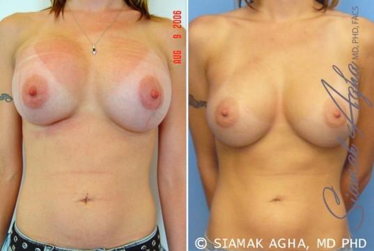 orange-county-breast-augmentation-revision-patient-2-front