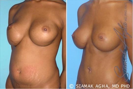 orange-county-breast-augmentation-revision-patient-3-front-left