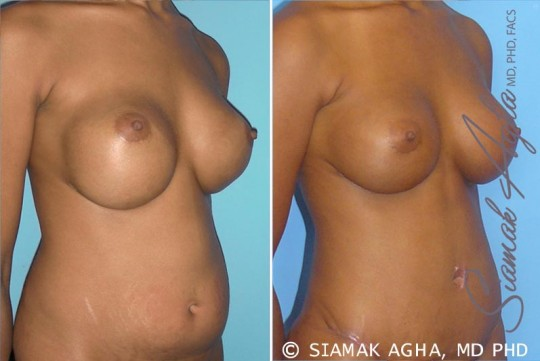 orange-county-breast-augmentation-revision-patient-3-front-right