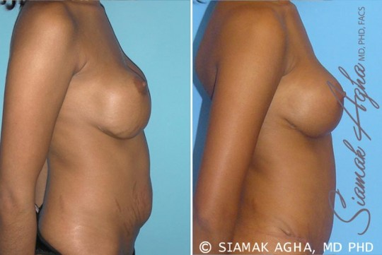 orange-county-breast-augmentation-revision-patient-3-right