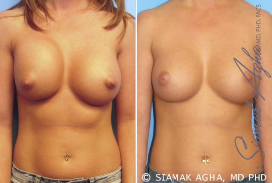 orange-county-breast-augmentation-revision-patient-4-front