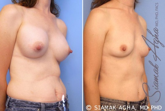 orange-county-breast-augmentation-revision-patient-6-front-right