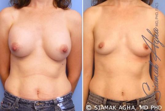 orange-county-breast-augmentation-revision-patient-6-front