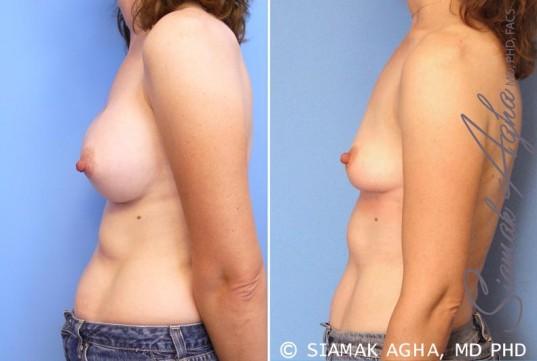 orange-county-breast-augmentation-revision-patient-6-left