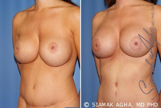 orange-county-breast-augmentation-revision-patient-9-front-left