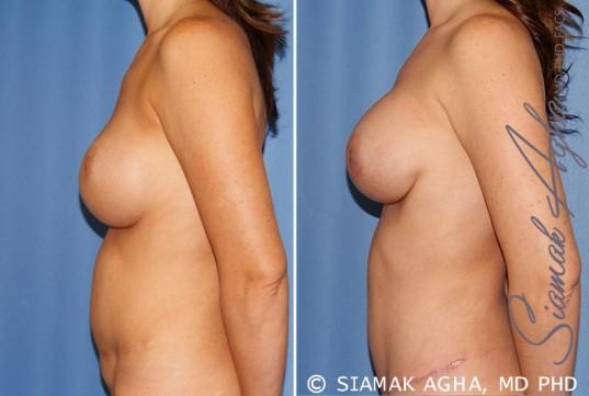 orange-county-breast-augmentation-revision-patient-9-left