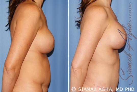 orange-county-breast-augmentation-revision-patient-9-right