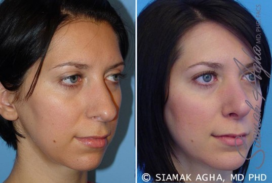 orange-county-chin-augmentation-patient-1-front-right
