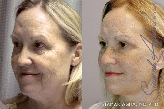 orange-county-facelift-patient-1-front-left