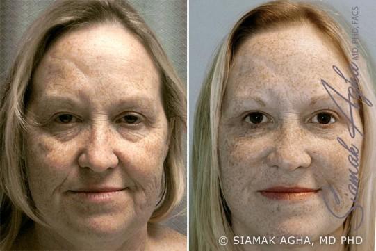 orange-county-facelift-patient-1-front