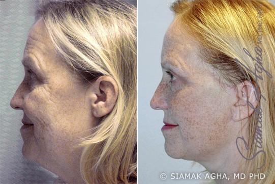 orange-county-facelift-patient-1-left
