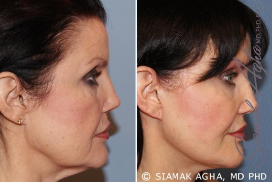 orange-county-facelift-patient-10-right