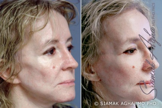 orange-county-facelift-patient-11-front-right