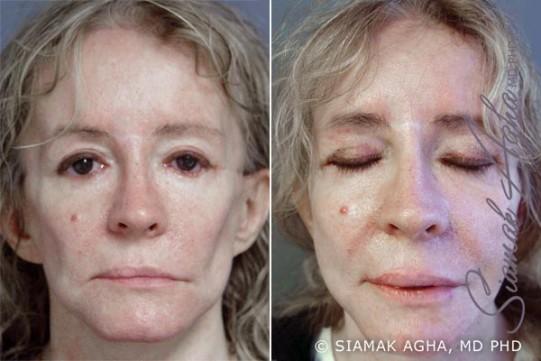 orange-county-facelift-patient-11-front