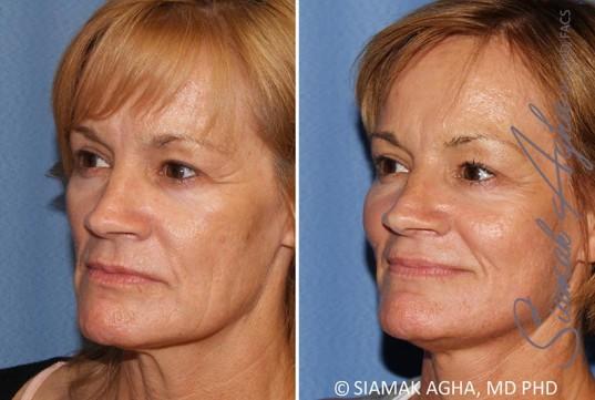 orange-county-facelift-patient-13-front-left