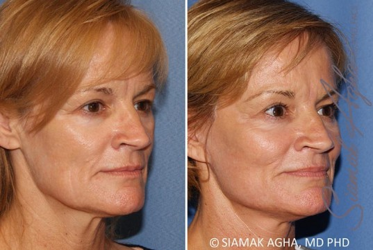 orange-county-facelift-patient-13-front-right