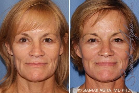 orange-county-facelift-patient-13-front