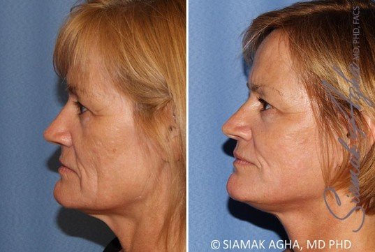 orange-county-facelift-patient-13-left