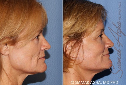 orange-county-facelift-patient-13-right