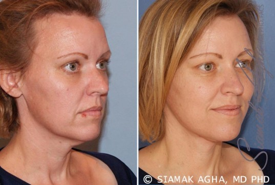 orange-county-facelift-patient-2-front-right