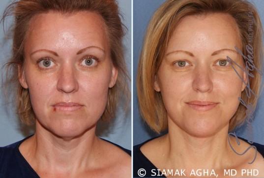 orange-county-facelift-patient-2-front