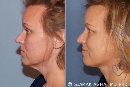 orange-county-facelift-patient-2-left