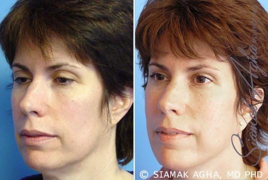 orange-county-facelift-patient-5-front-left