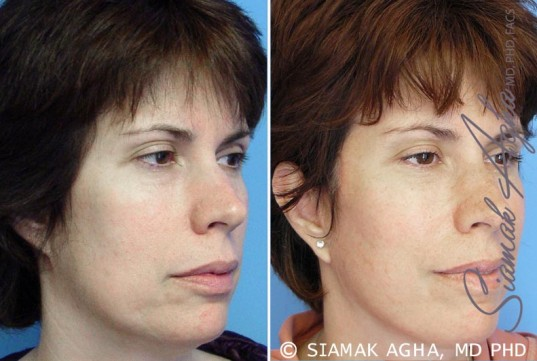 orange-county-facelift-patient-5-front-right