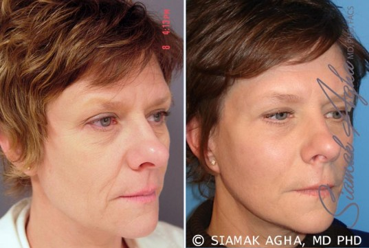 orange-county-facelift-patient-6-front-right