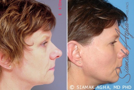 orange-county-facelift-patient-6-right