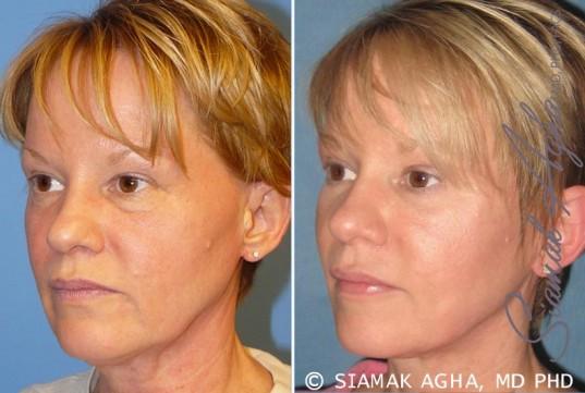 orange-county-facelift-patient-7-front-left
