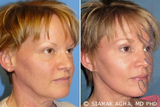 orange-county-facelift-patient-7-front-right