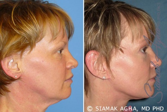 orange-county-facelift-patient-7-right