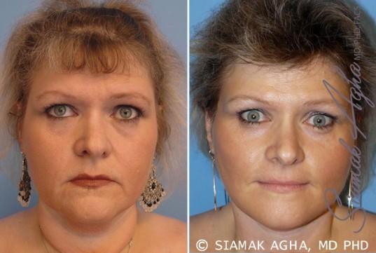 orange-county-facelift-patient-8-front