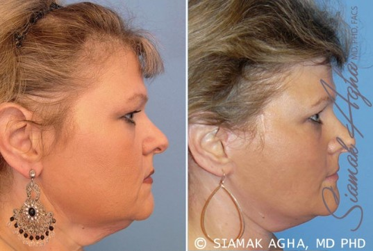 orange-county-facelift-patient-8-right