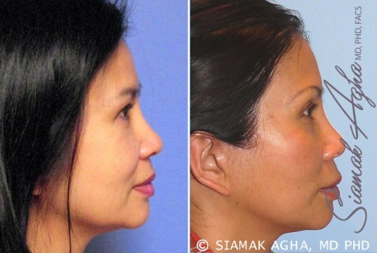orange-county-facelift-patient-9-right