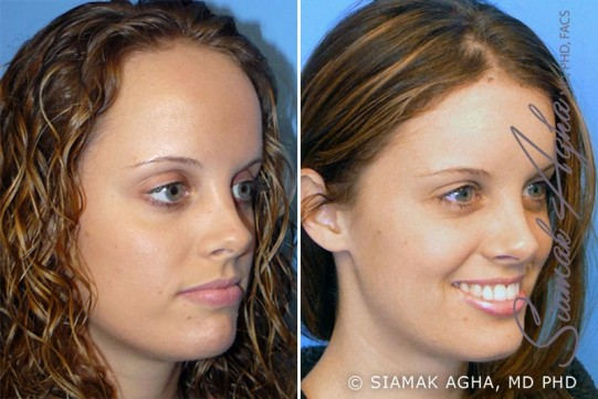 orange-county-forehead-reduction-patient-1-front-right