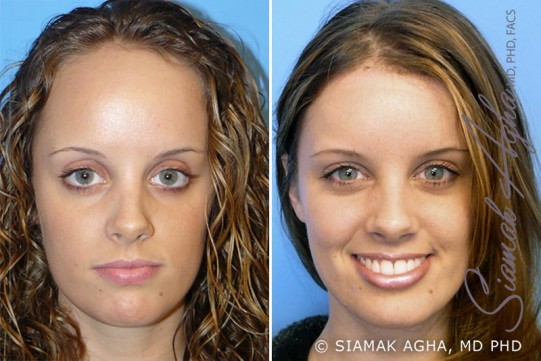 orange-county-forehead-reduction-patient-1-front