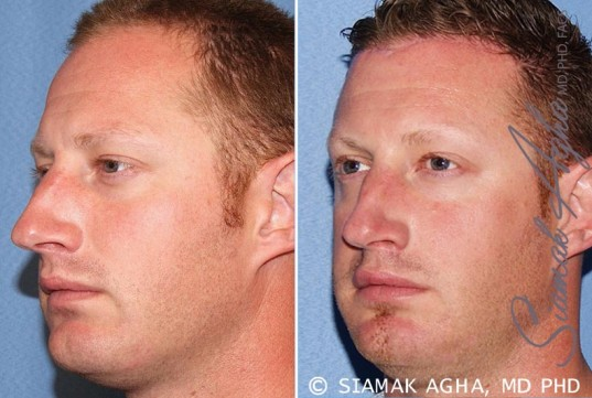 orange-county-forehead-reduction-patient-2-front-left