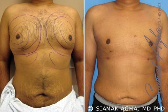 orange-county-liposuction-patient-1-front