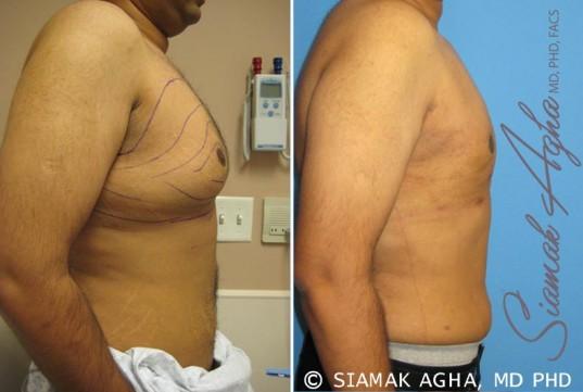 orange-county-liposuction-patient-1-right