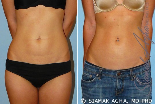 orange-county-liposuction-patient-11-front