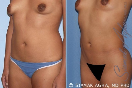 orange-county-liposuction-patient-13-front-left