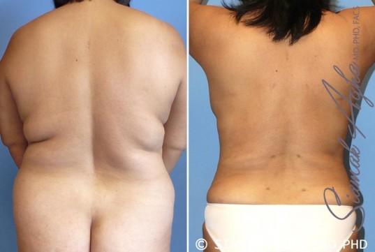 orange-county-liposuction-patient-17-back