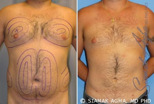 orange-county-liposuction-patient-6-front
