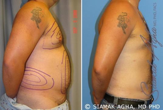 orange-county-liposuction-patient-6-left