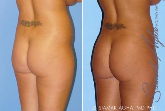 orange-county-liposuction-patient-8-back-right